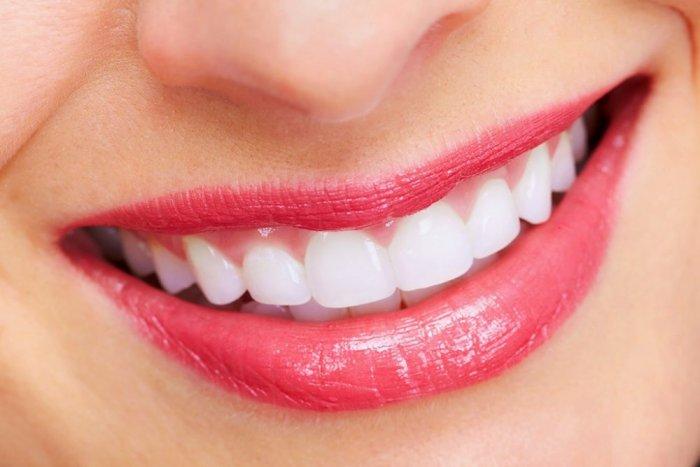 صورة اضرار تبييض الاسنان , معلومات عن تبيض الاسنان