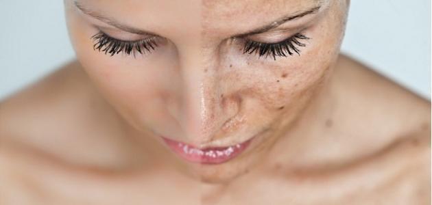 صورة الكلف في الوجه , وصفات لتقليل الكلف في الوجه