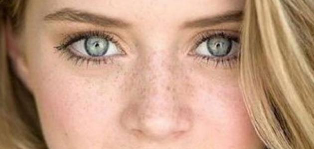 صور النمش في الوجه , علاج النمش بسهولة