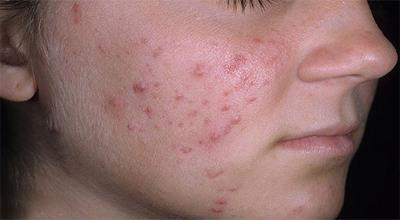 صورة البثور في الوجه , كيفية التخلص من بثور الوجه للبشرة الدهنية