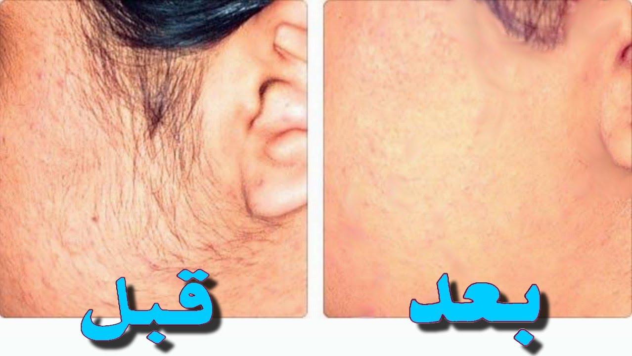 صورة الشعر في الوجه , وصفات لازالة شعر الوجه الي الابد