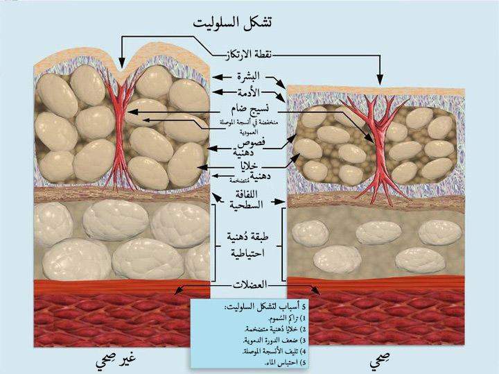 صورة كيفية التخلص من السيلوليت , خلطات طبيعية لحل مشكلة السيلوليت