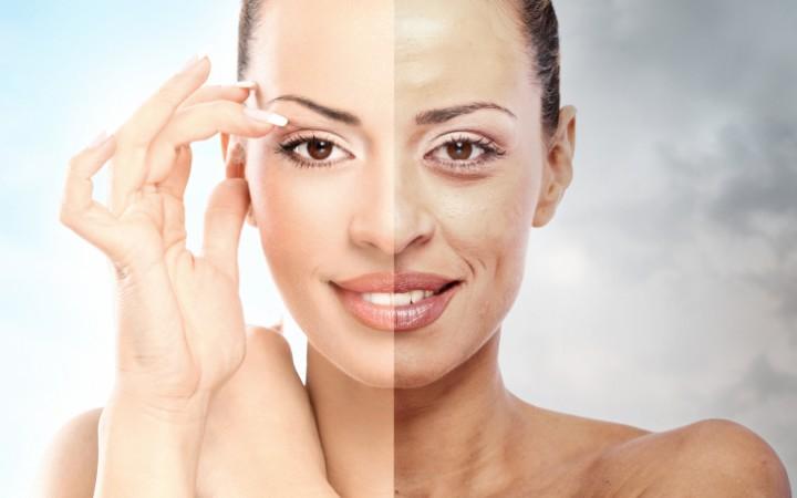 صوره ازالة دهون الوجه , حلول بسيطة للتخلص من مشكلة دهون الوجه للابد