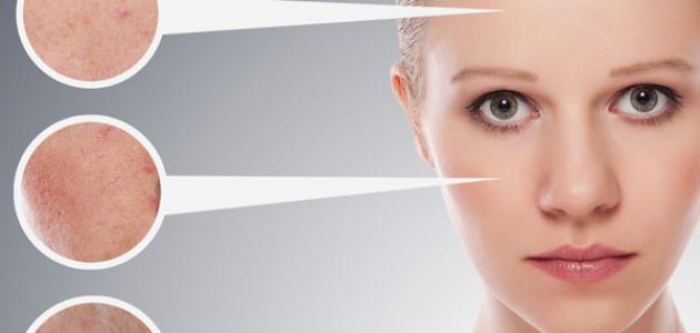 صوره علاج البشرة الدهنيه , نصائح هامة لكيفية التعامل مع البشرة الدهنية