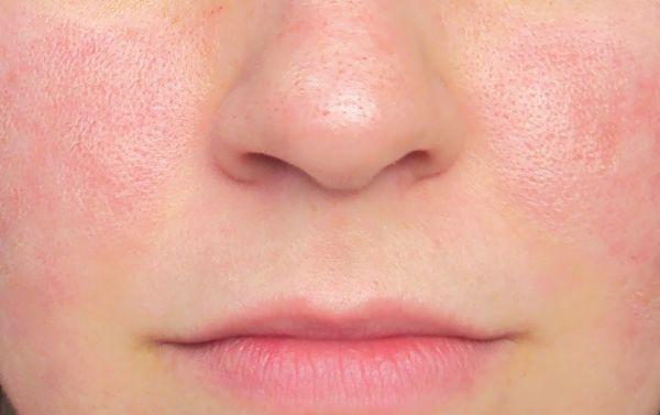 بالصور سد مسامات الوجه , اسهل طريقة يومية لعلاج مسامات الوجه الواسعة 6918