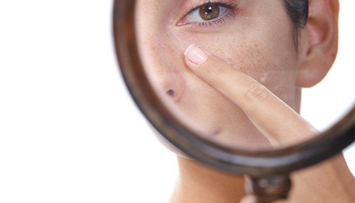 صوره لغلق مسامات الوجه , علاج اسوا مشكلات البشرة وهي المسام الواسعة