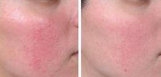 بالصور حساسية الوجه وعلاجها , وصفات طبيعية لعلاج حساسية البشرة 6229 1