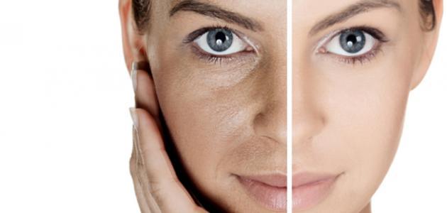 بالصور علاج تصبغات الوجه , اسباب تصبغات الوجه 6243 1