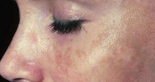 صوره علاج تصبغات الوجه , اسباب تصبغات الوجه