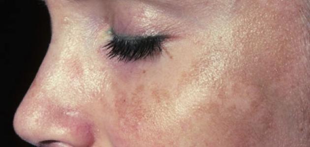 بالصور علاج تصبغات الوجه , اسباب تصبغات الوجه 6243