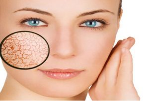 صور علاج قشور الوجه , كيفية العناية بالبشرة الجافة