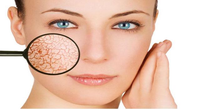 صورة علاج قشور الوجه , كيفية العناية بالبشرة الجافة