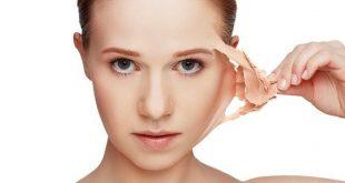 صورة اسباب تقشر الوجه , علاج تقشير البشرة