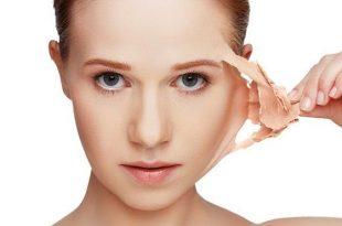 صور اسباب تقشر الوجه , علاج تقشير البشرة