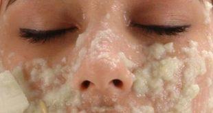 صورة فوائد تقشير الوجه , احصلى على بشرة كبشرة الاطفال