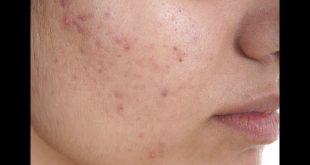 صورة علاج بثور الوجه , طرق بسيطه للتخلص من بثور الوجه
