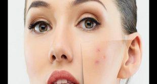 صورة علاج بقع الوجه , كيفيه علاج البقع التي تظهر في الوجه
