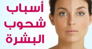 صورة علاج اصفرار الوجه , علاج شحوب الوجه واصفراره