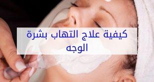 صورة علاج التهاب البشرة , كيفيه التخلص من التهابات الوجه