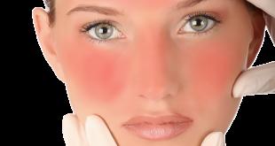 علاج حروق الوجه , كيفيه علاج الحروق بالوصفات الطبيعيه