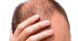 الاثار الجانبية لزراعة الشعر , اضرار زراعة الشعر