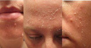 صورة كوني حذرة بعد اجراء التقشير الكيميائي , اضرار التقشير الكيميائي